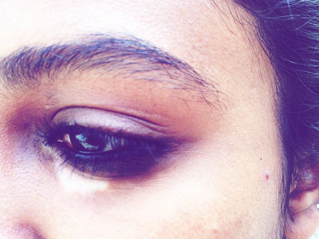 How a Tiny White Patch Under My Eye and Vitiligo Skin Disorder Shaped My  Life Forever   Vitiligo skin, Vitiligo, White patches