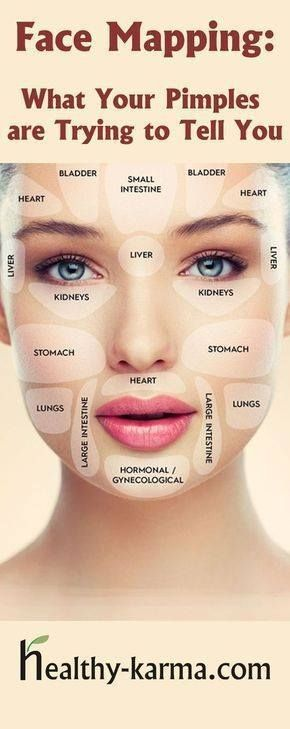 Acne Body Mapping Zones So according to this my whole