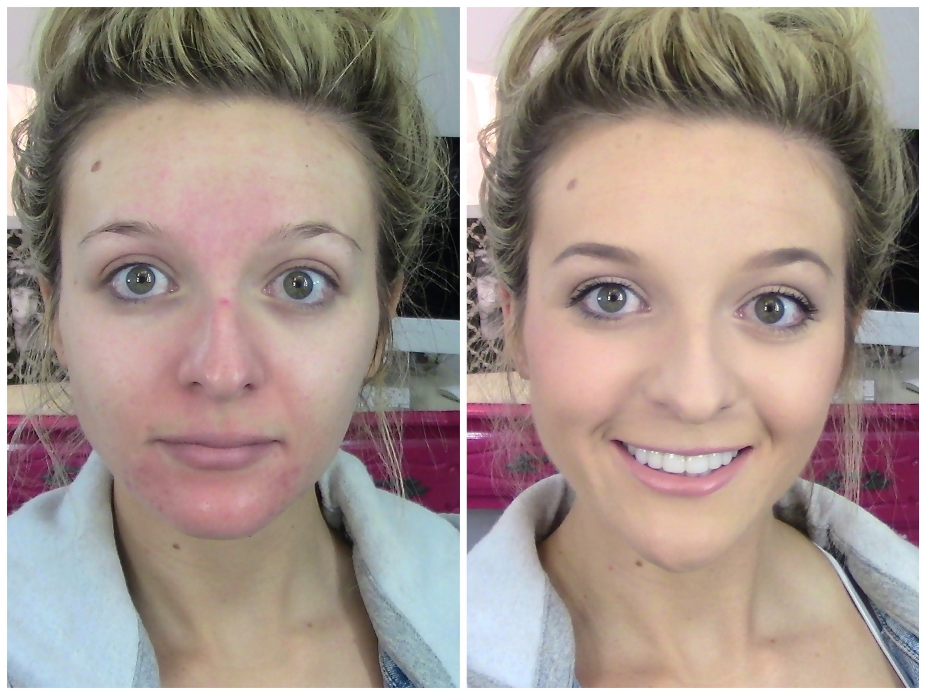 Acne, Rosacea FULL Coverage Foundation Routine Using