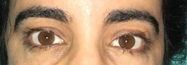 56698edd6cb Trichotillomania Success Story. See how Rosa and her eyelash pulling  treatment that worked for her, maybe it will help you stop pulling too!