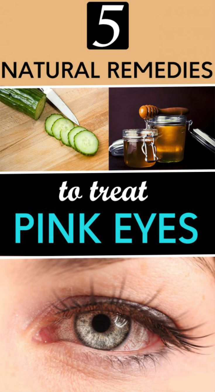 5 Natural Remedies To Treat Pink Eyes Lifestyle 365