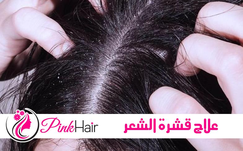 اساب و علاج قشرة الشعر والتخلص منها نهائي ا Pinkhair Hair