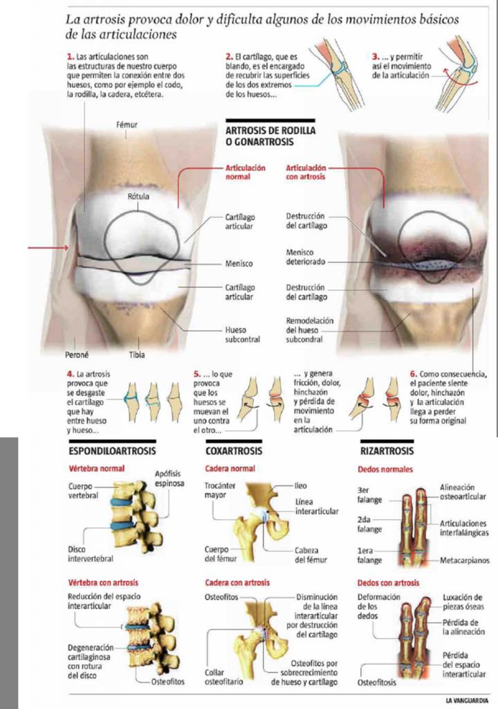 la artrosis es la hermana pobre de las enfermedades | laartrosis.com ...