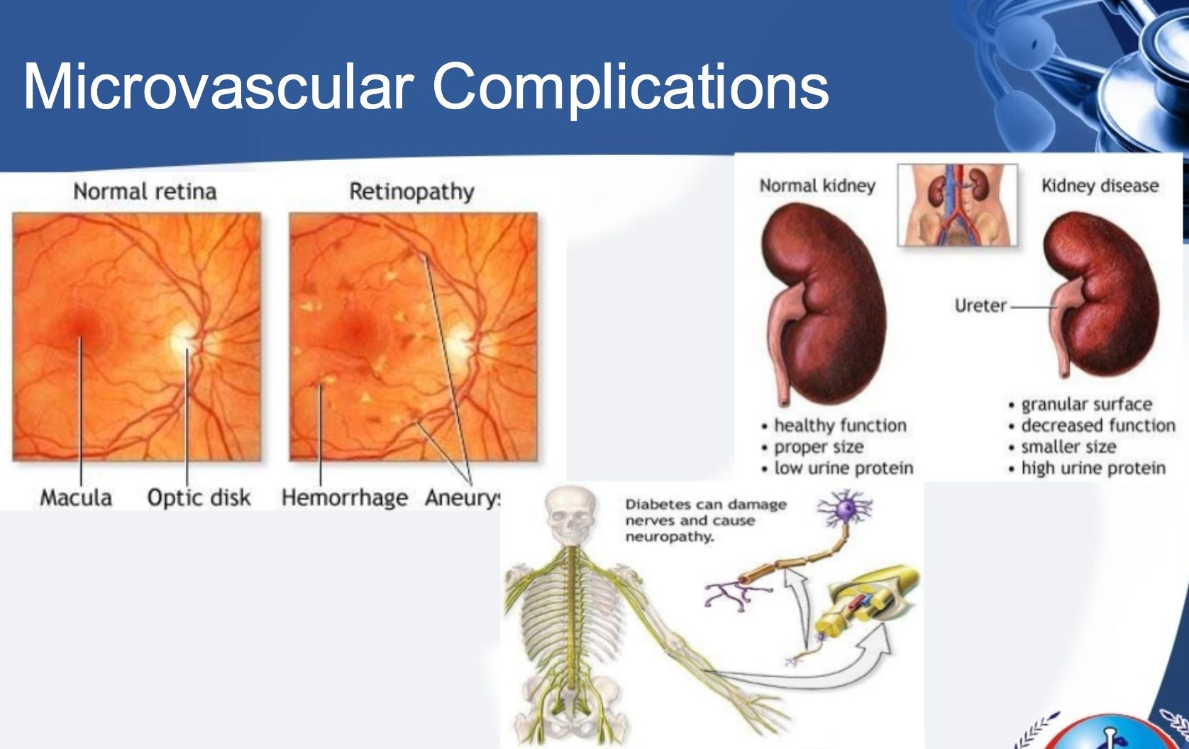 retinopatía diabetes nefropatía sangre
