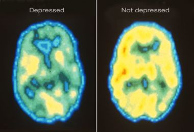 Can You Stop Depression from Damaging Your Brain?