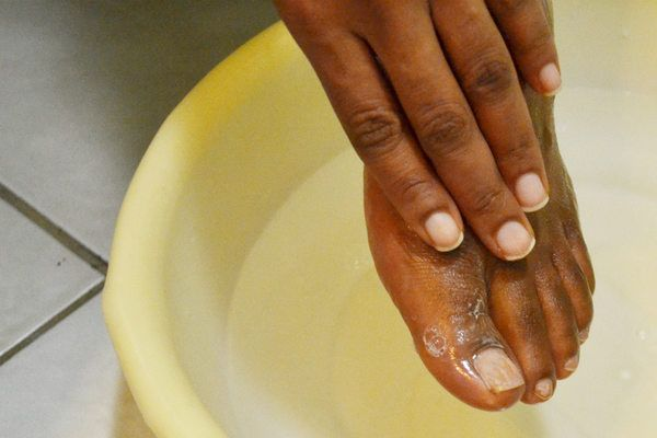 How to Kill Toenail Fungus With Bleach (with Pictures) | eHow ...