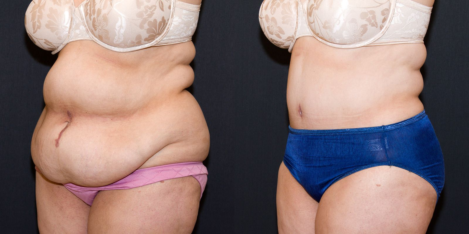 weight loss before or after tummy tuck