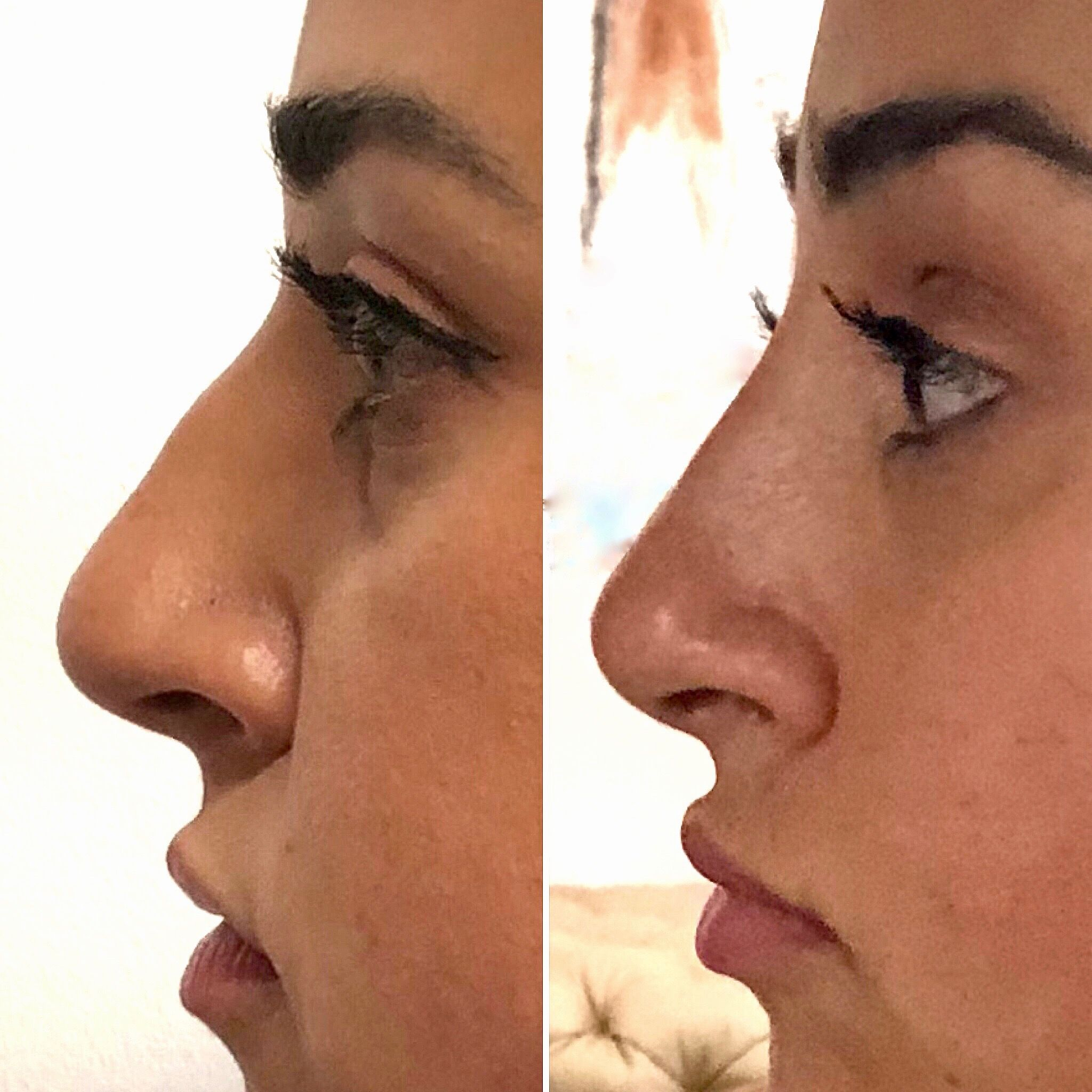 Non Surgical Nose Job With Dr Cohen Will Give You All The Benefits Of A Rhinoplasty Without Surgery Nose Job Rhinoplasty Nose Fillers
