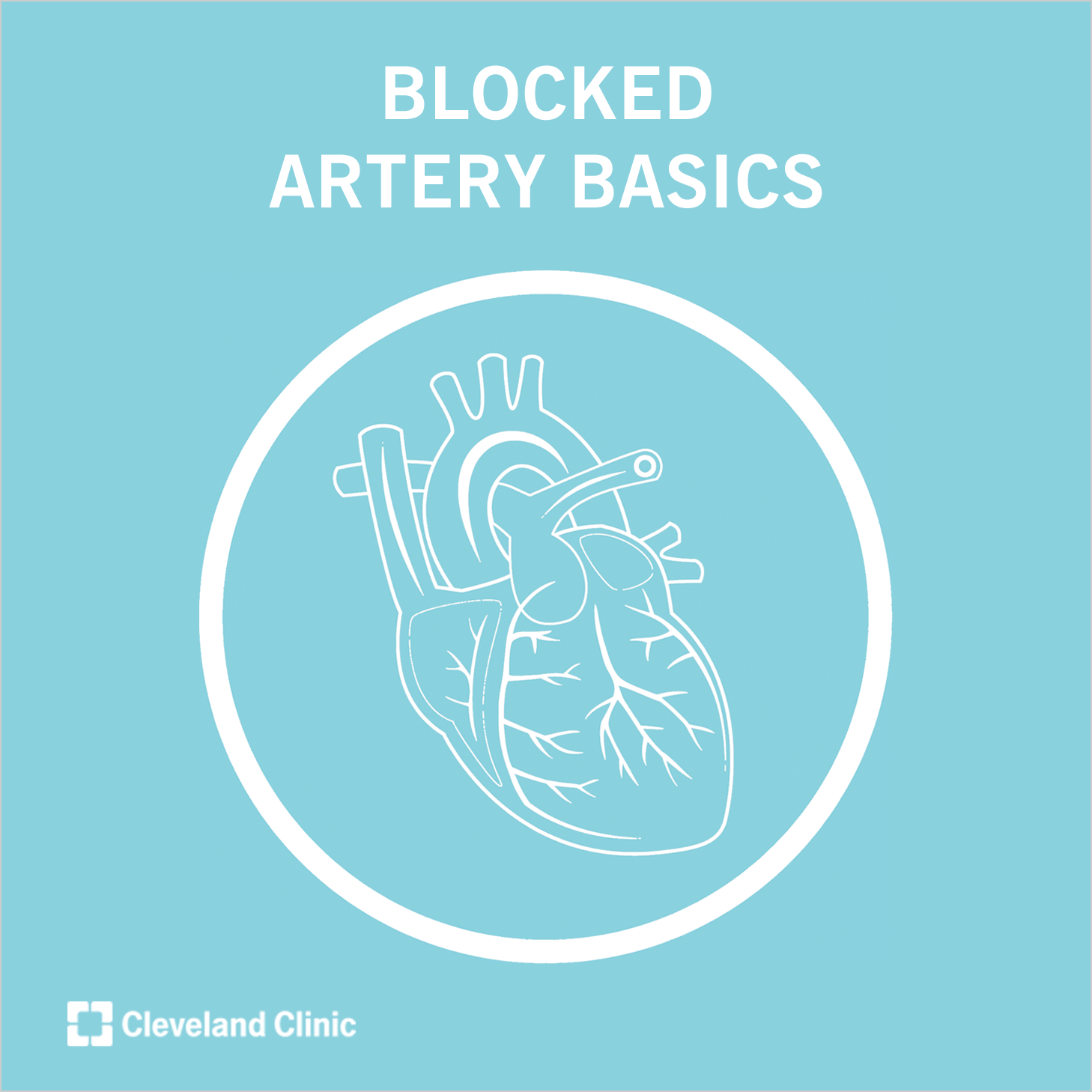 Blocked Arteries: When to Call for Help (Video) Umesh N. Khot, MD, breaks down the basics of seriously blocked arteries.    Learn warning signs and when to call for help.Umesh N. Khot, MD, breaks down the basics of seriously blocked arteries.    Learn warning signs and when to call for help.