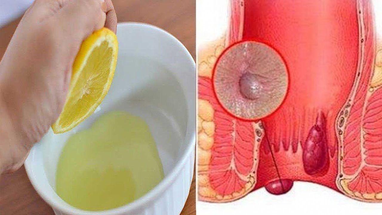 How To Get Rid Of Hemorrhoids Hemorrhoid Removal Hemorrhoidectomy Getting Rid Of Hemorrhoids Hemorrhoid Remedies Hemorrhoid Removal