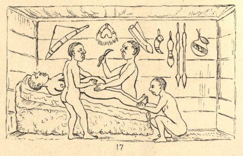 "Africans were performing many advanced medical procedures long before they had been conceived in Europe. Successful Cesarean section performed by indigenous healers in Kahura, Uganda. As observed by R. W. Felkin in 1879 from his article ""Notes on Labour in Central Africa"" published in the Edinburgh Medical Journal, volume 20, April 1884, pages 922-930."