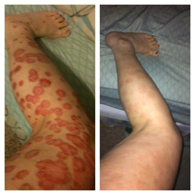 Vene varicoase – PreVasc
