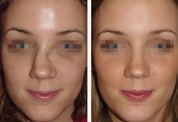 Pin By Vee Petranek On Best Rhinoplasty Surgeon In Florida