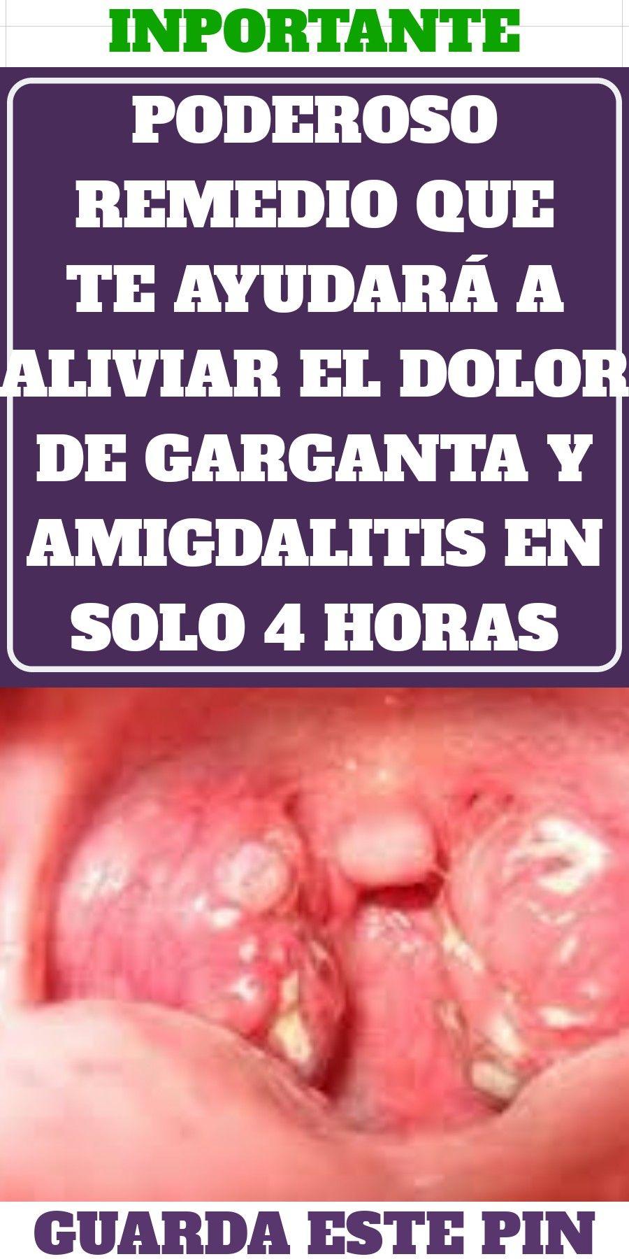 como aliviar dolor de garganta por amigdalitis