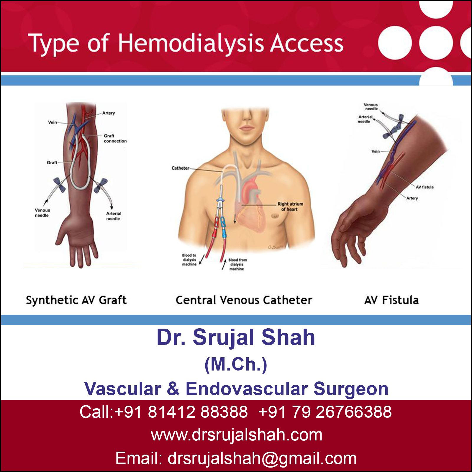 Hemodialysis Treatment Usually Takes Three To Five Hours And Is