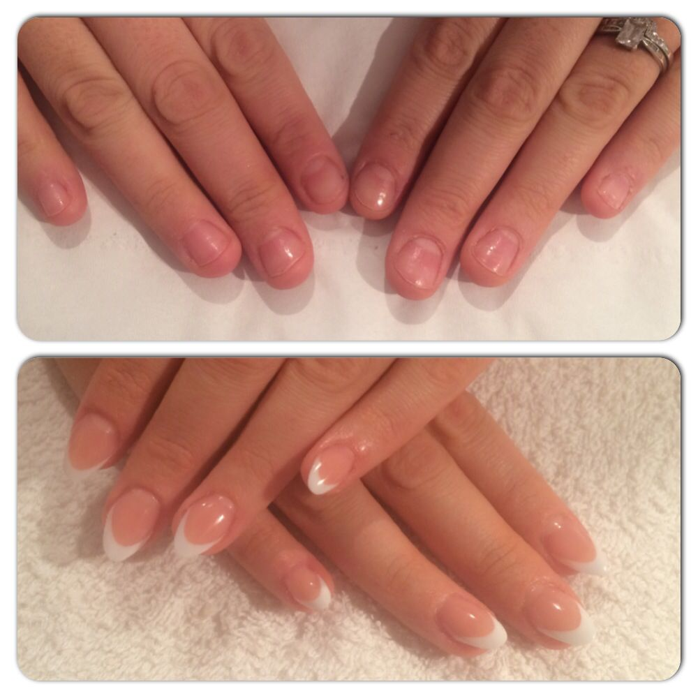 Before and after nail biter acrylic nails | before and afters ...