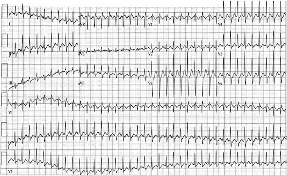 ecg of electrical alterans cardiac tamponade | Nursing school ...