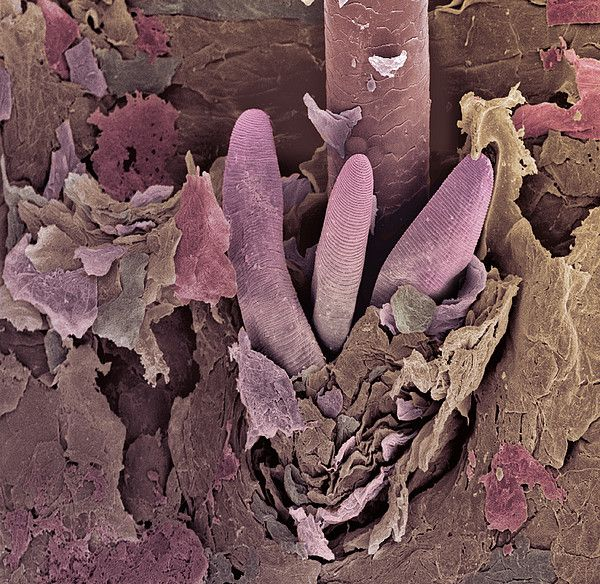 Colored Sem Of The Tails Pink Of Three Eyelash Mites Demodex