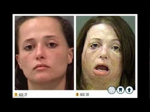 sexy people on heroin