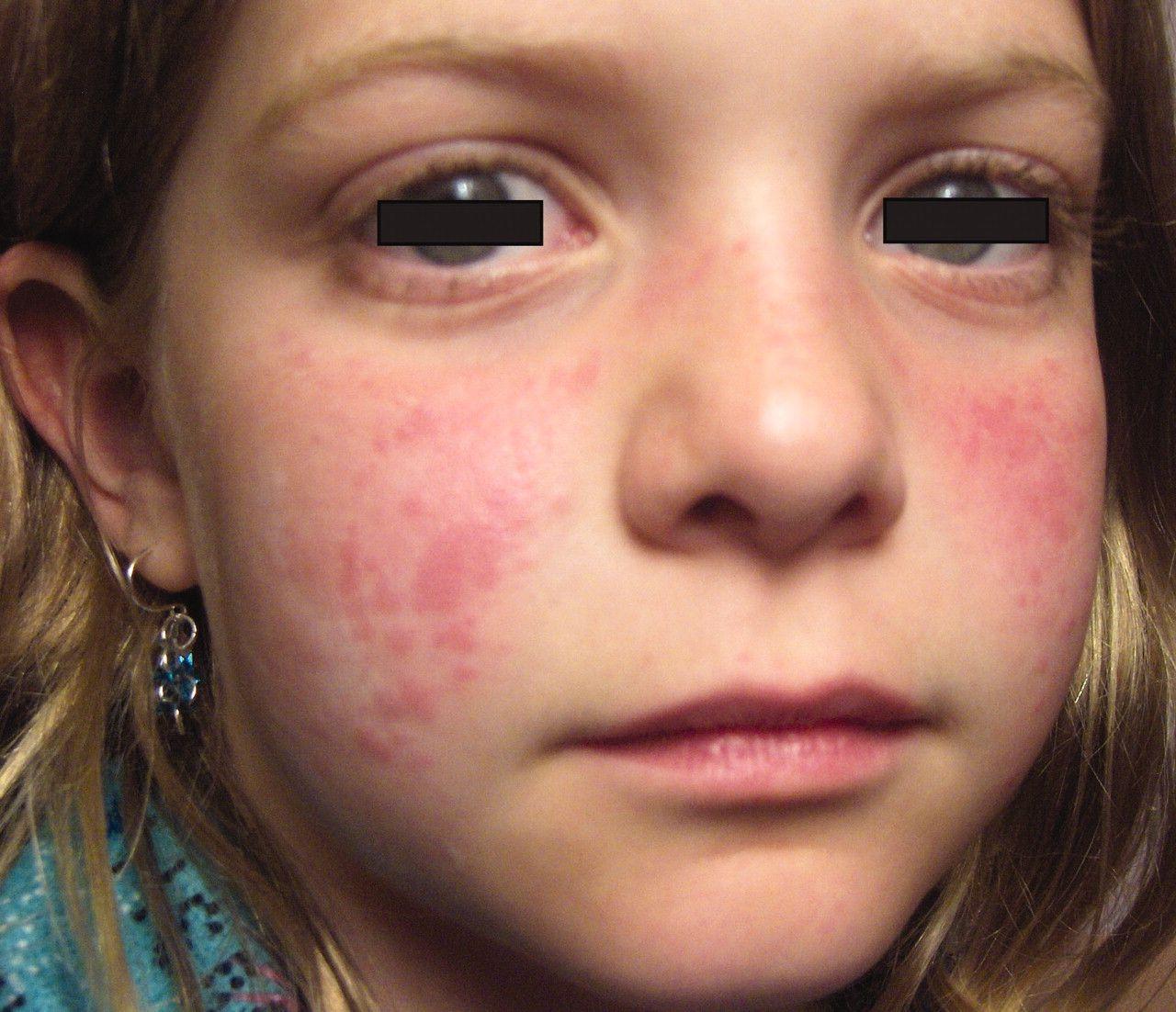 1000+ images about Juvenile Rheumatoid Arthritis on Pinterest ...