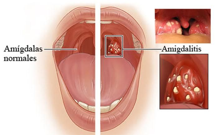 Adiós Al Dolor De Garganta Y La Amigdalitis En 4 Horas Con Este Remedio Natural Medicine Sore Throat Healing Food