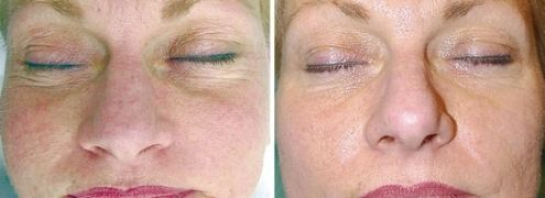skin roller before and after