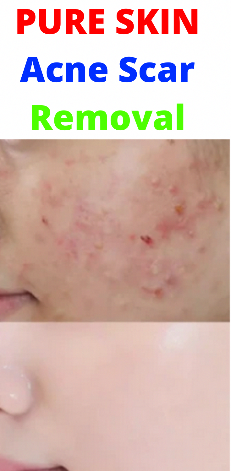 3418be3cf807902e52167745c1f16b41 - How To Get Rid Of Spot Lump Under Skin