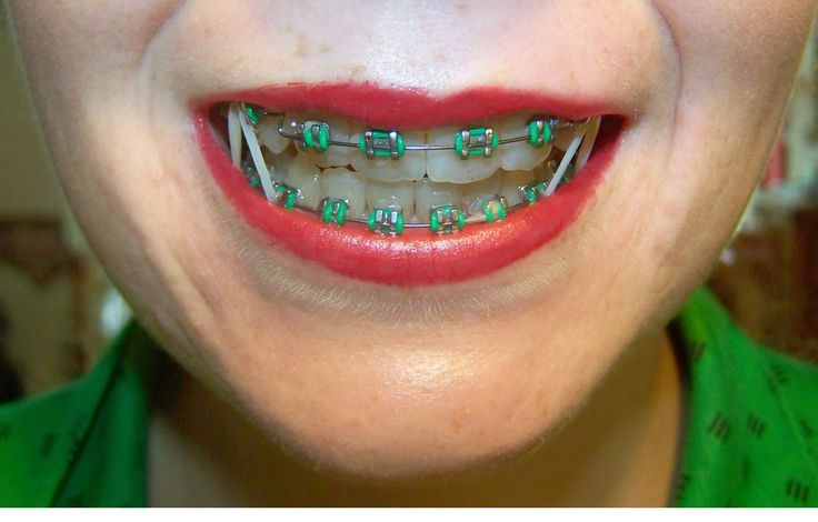 Park Art|My WordPress Blog_What Does Rubber Bands Do For Braces