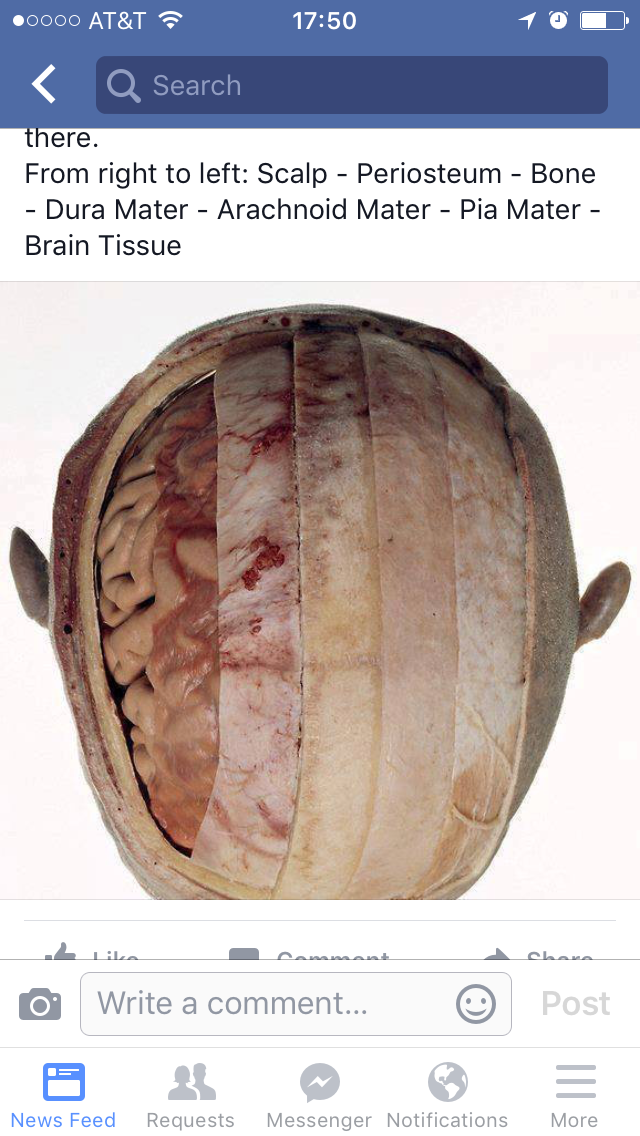 Brain tissue image by Vickie Roos on EMS   Dura mater, Bones