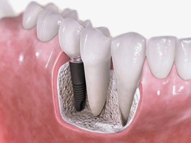 La Olla Exprezza: Nuevos materiales para implantes dentales Brit Phillips DDS