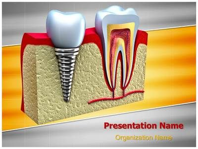Check Out Our Professionally Designed Dental Implant Teeth Ppt