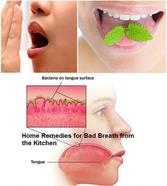 How To Tell If U Have Bad Breath