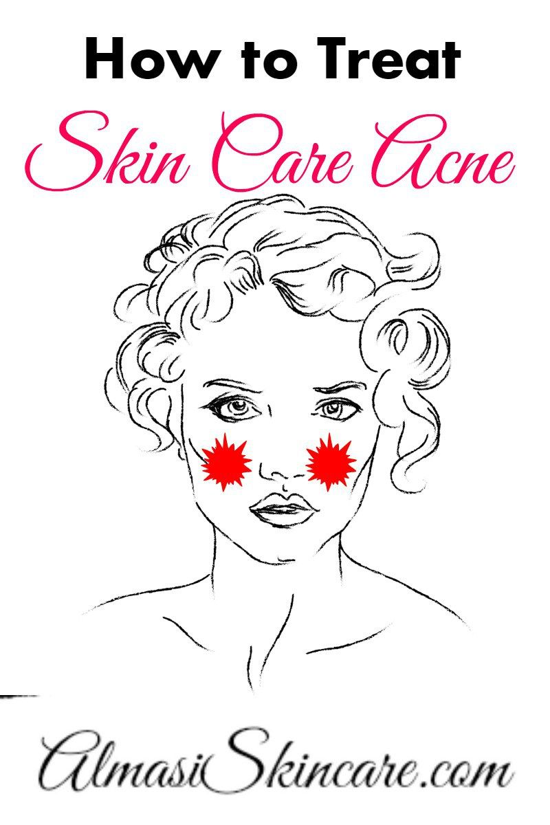 Skin Care Adult Acne Treatment