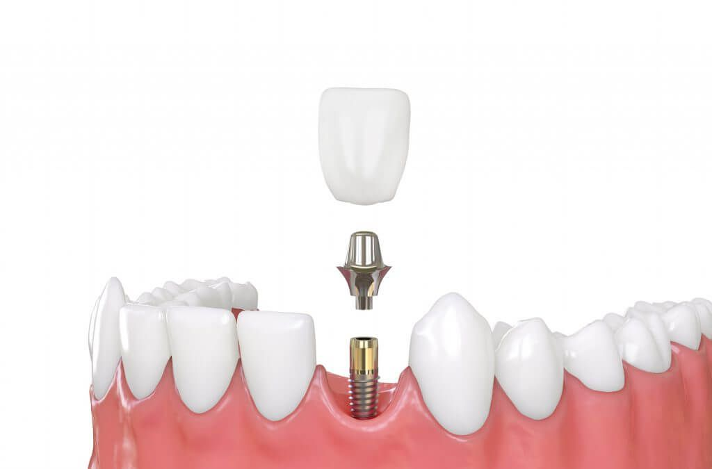 Do you need a new smile providence dental care offer