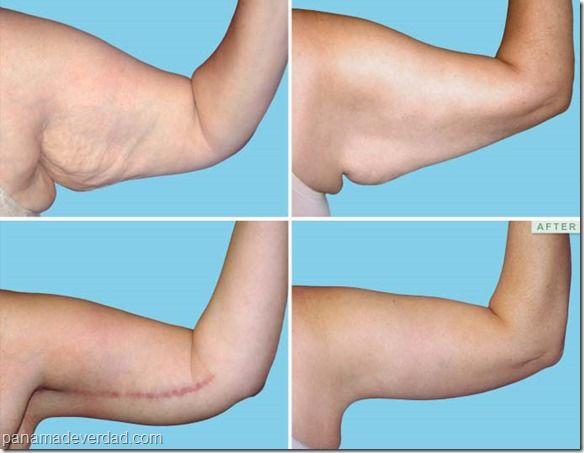 Cirugia para adelgazar los brazos