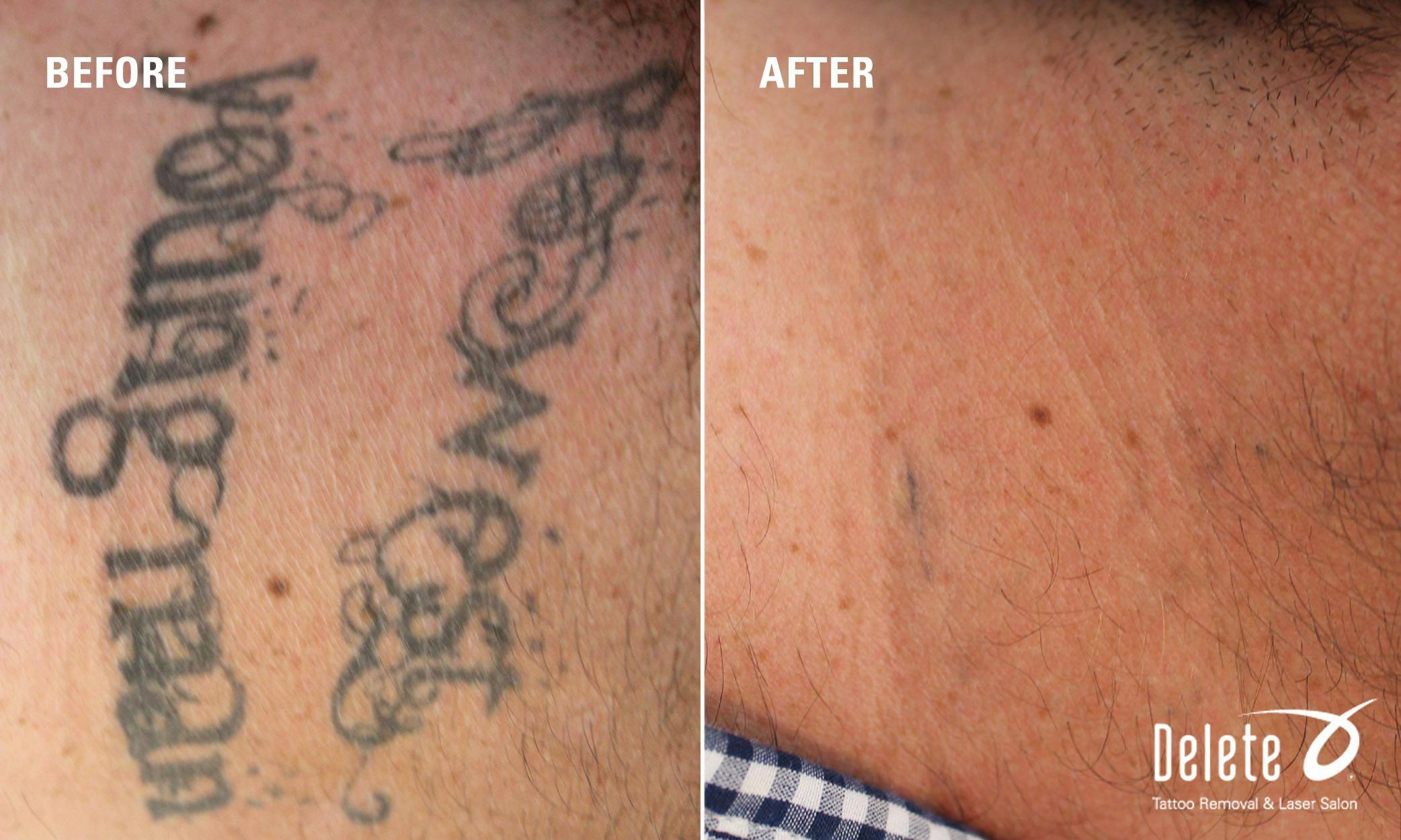 When It Is About Getting A Job Or Joining The Military Patients Hit Delete To Remove Their Neck Tattoos Tattoo Removal Laser Tattoo Removal How To Remove