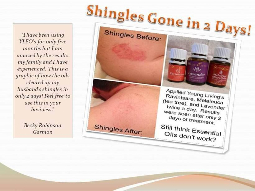 Young Living Essential Oils: Shingles | www.thewelloiledlife.com for more oil info!