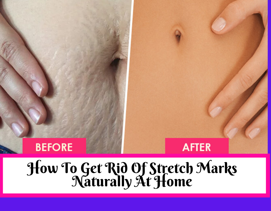 How To Get Rid Of Stretch Marks Naturally After Pregnancy