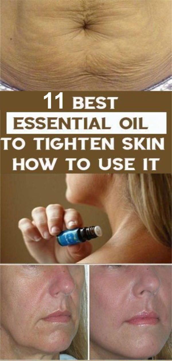 Ätherische Öle zur Straffung der Haut-11 Beste ätherische Öle für schlaffe Haut   – Health and Wellness