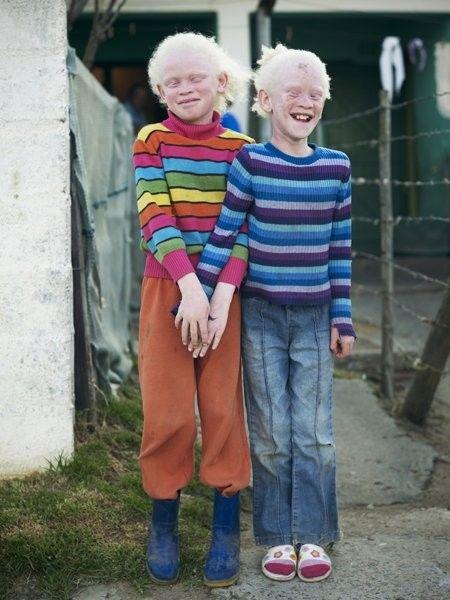 Albino Twins Albino Human Albino Twins Beautiful Children