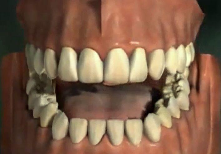 Penyebab Gigi Berwarna Kuning Kesehatan Gigi Pinterest