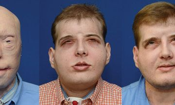 Incredible Transformation Of Face Transplant Recipient Who Feels 'Normal' For First Time In 15 Years