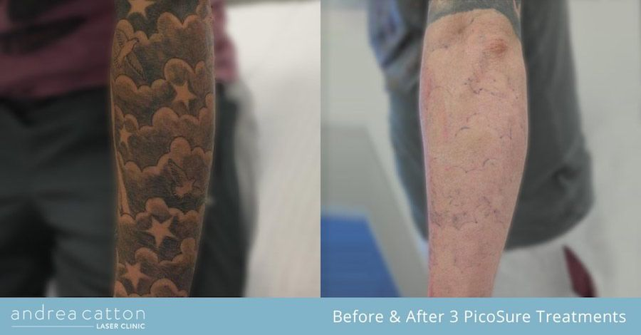 Lower Arm Tattoo Before And After Three Picosure Laser Treatments Tattooremoval Tattoos Inked Tattooregret Lower Arm Tattoos Diy Tattoo Permanent Tattoos