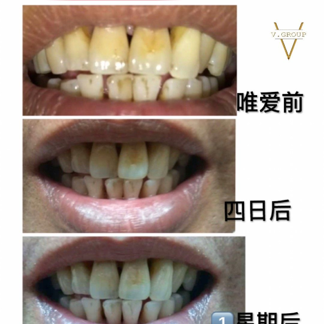 Smoking Teeth Before And After Use Whitening Machine I Love White