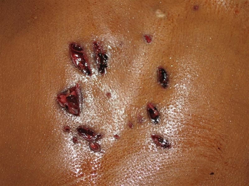 How to get rid of burn scars