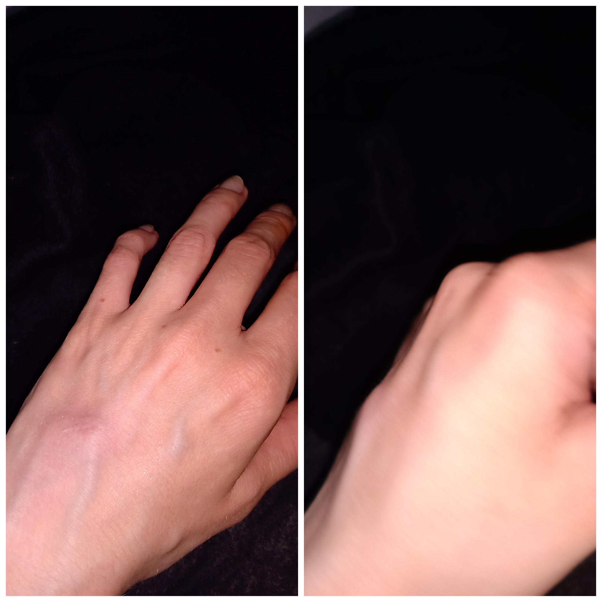 Hand blauer fleck The ''two