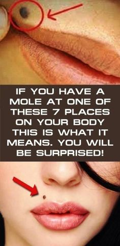 IF YOU HAVE A MOLE AT ONE OF THESE 7 PLACES ON YOUR BODY…