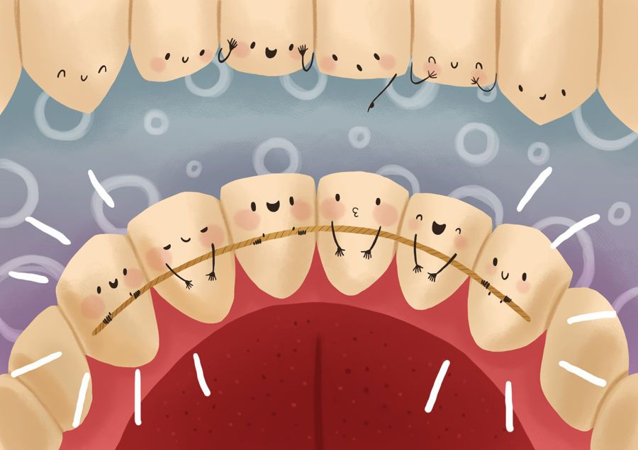 how long to keep gauze in after tooth extraction uk