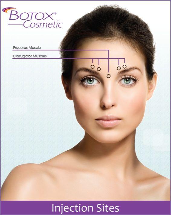 Botox Eyebrow Lift Injection Sites 1000 Images About B Botox B