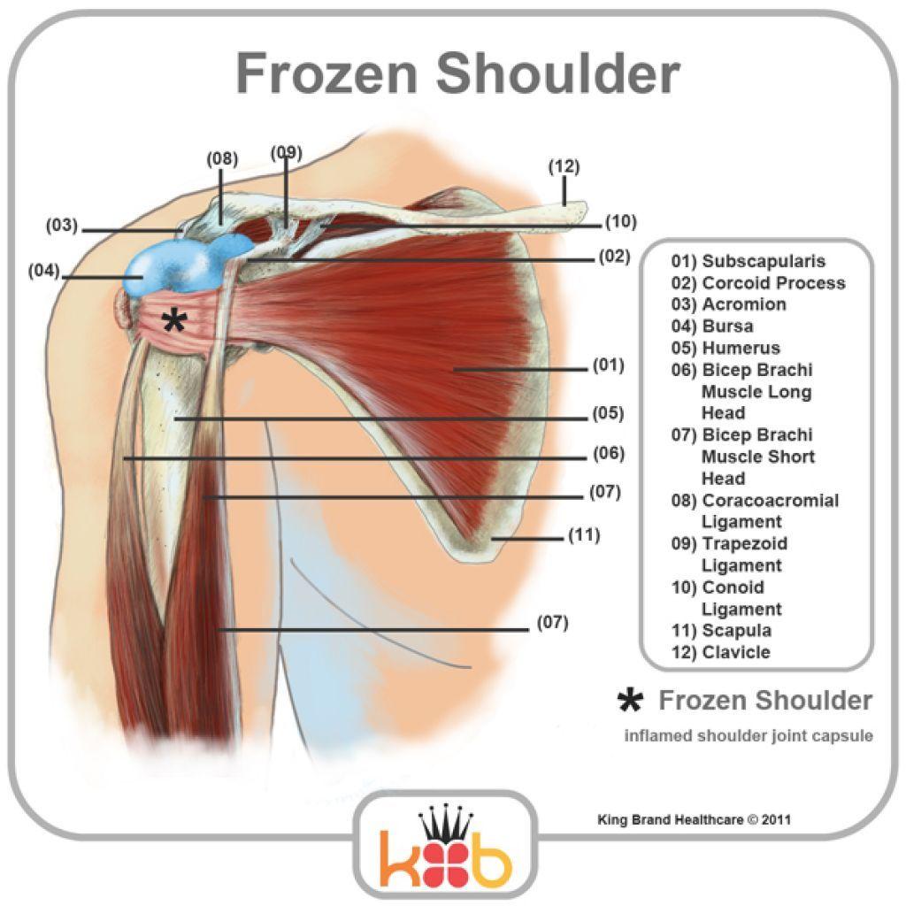 diagram of shoulder tendons diagram of shoulder tendons diagram of diagram of right shoulder tendons diagram of shoulder tendons [ 1024 x 1024 Pixel ]